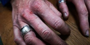 cracked and bleeding jewellery hands